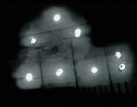 Rentgenový snímek kostěného hřebenu s kovovými nýty.